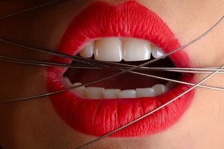Miért fontos a rendszeres fogászati ellenőrzés?